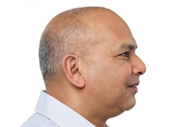 Homme qui porte un appareil auditif invisible